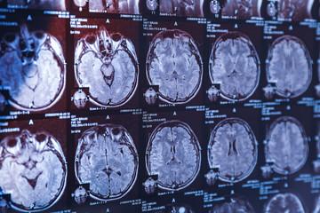 MRI scan of human head, closeup