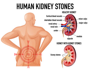 Comparison of healthy kidney and kidney with stones