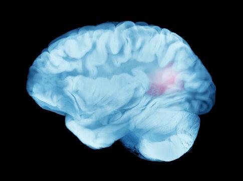 Brain Cerebral Aneurysms Causing Hemorrhagic Stroke or Paralysis