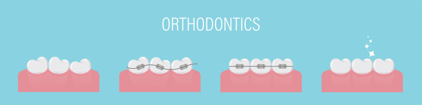 The concept of teeth alignment with braces. Poster with crooked teeth, in braces and healthy even. Simple teeth in a row. Orthodontic treatment. Isolated vector illustration. Flat style