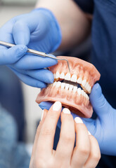 The dentist's hand holds an artificial jaw mock-up and shows the patient's teeth. Treatment in a dental clinic. Close-up.