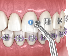 Metal braces installation process. Medically accurate dental 3D illustration