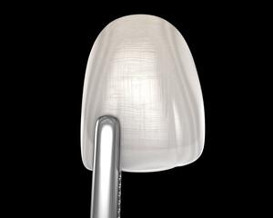 Dental Veneer for central incisor. 3D illustration