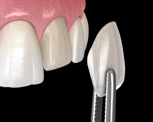 Dental Veneer installation procedure over central incisor. 3D illustration