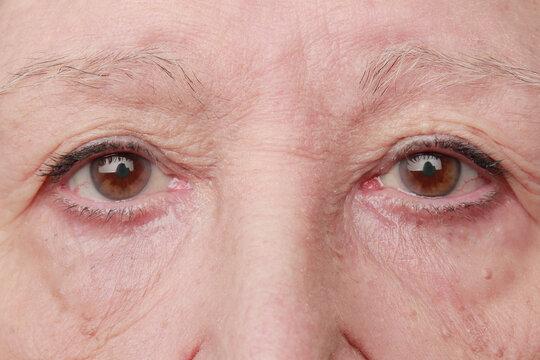 mirada triste de mujer mayor mirando a cámara con verrugas pequeñas en la piel y bolsas en los ojos