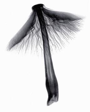 X-ray image of mushroom