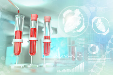 Medical 3D illustration, proofs vials in study clinic - blood sample test for alkaline phosphatase or phosphorus with creative overlay