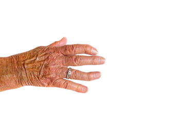 A brown hand with two silver rings of an elderly woman with Rheumatoid Arthritis disease on a white background.