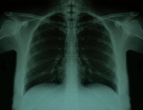 Lugs x-ray