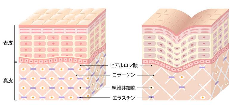 しわ 肌の断面図 ビフォアアフター