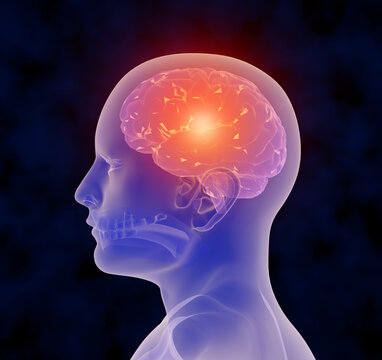 A 3-D illustration depicting the sensation of a headache.