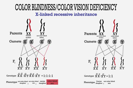 Color blindness genetics on X chromosome. X-linked gene