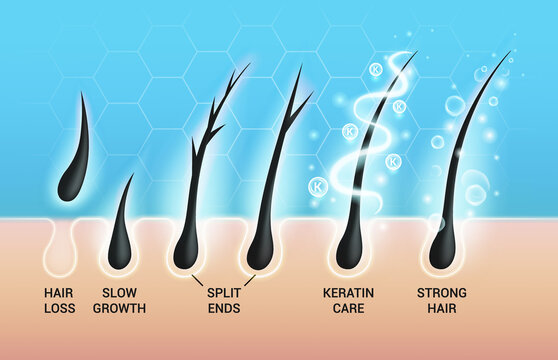 Different hair problems and deep salon treatment vector illustrations set, macro view of balding scalp skin and follicles.