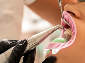 teeth sandblasting, tartar cleaning and whitening