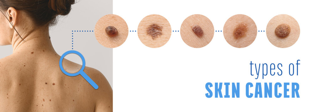 Young woman with different types of moles. Concept of skin cancer