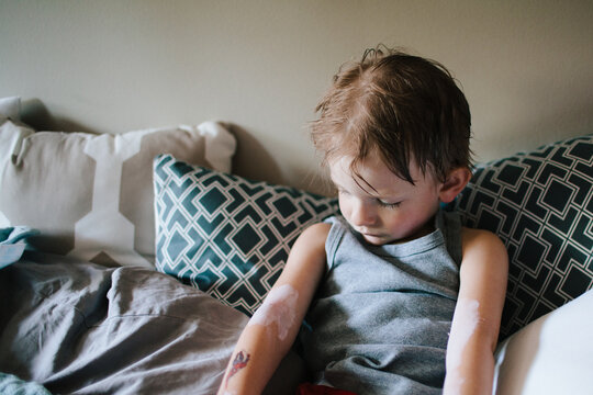 a little boy with calamine lotion on the poison ivy on his arms