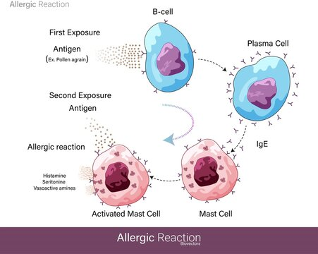 Mechanism of Human allergic reaction caused by a foreign substance or Allergens like pollen grain which are harmless but lead to hypersensitivity and activation of Mast cell degranulation vector eps
