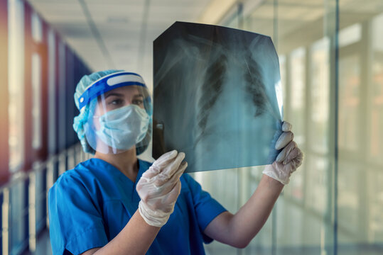 young nurse in  blue uniform protective mask face shield looks at the result of lung fluorography