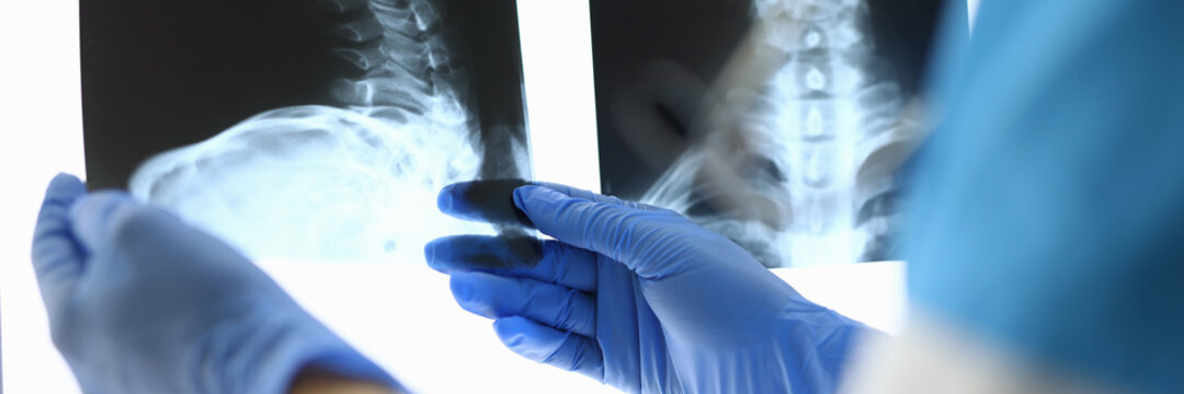 Doctor's hands in gloves hold X-rays of bones. Medical examination concept