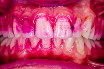 close up of mouth with teeth and plaque stain