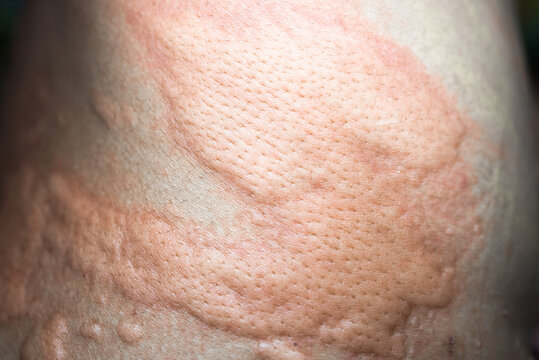 urticaria on skin. rashes, of which urticaria and toxic erythema are the most common.