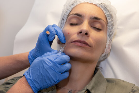 Beautiful, attractive, young woman, lying relaxed in dermatologist ordination, getting a rejuvenating facial treatment with hyaluronic acid filler. Cosmetics and beauty  corrections, skin care concept