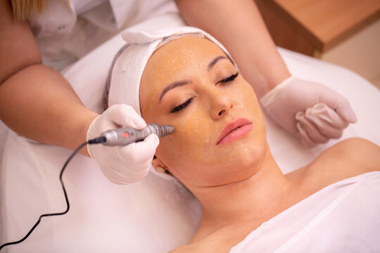 Close up a woman's face in beauty salon during a treatment with electronic pen
