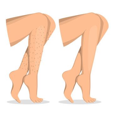 Leg depilation before and after vector isolated. Female body, hair removal. Skin care, epilation procedure. Illustration of a beautiful body.