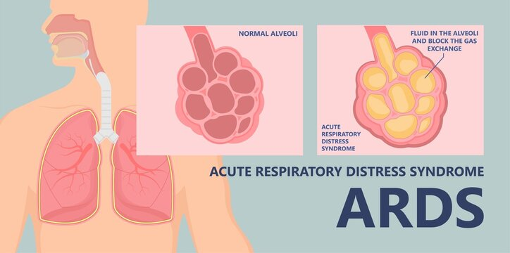 Acute respiratory distress syndrome (ARDS) a respiratory failure and inflammation in the lungs equipment hospital Emphysema fibrosis idiopathic Cystic Collapsed pneumothorax embolism