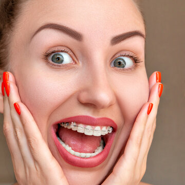 Closeup Braces on Teeth. Woman Smile with Orthodontic Braces Damon