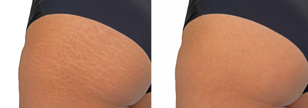 Image compare before and after Woman buttocks with stretch marks removal treatment, real people