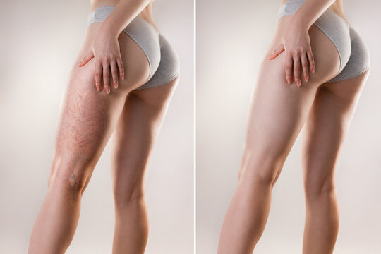 Medicine and varicose veins. A young woman of athletic build is holding her leg with her hand, with a varicose mesh on her thigh. Before and after