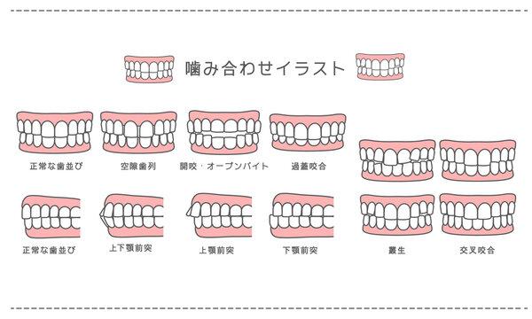 歯科_歯科矯正・歯並び・噛み合わせ一覧