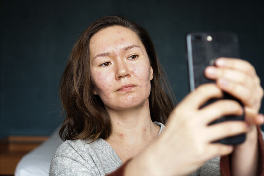 An adult woman infected with varicella virus taking a selfie at home