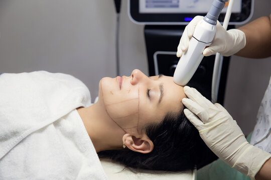 Woman receiving HUFU therapy- high intensity focused ultrasound treatment on face. Therapist doing non-surgical cosmetic plasma lift on female client forehead with ultrasonic device. SMAS lifting