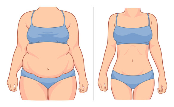 Woman's body before and after weight loss. Vector illustration.