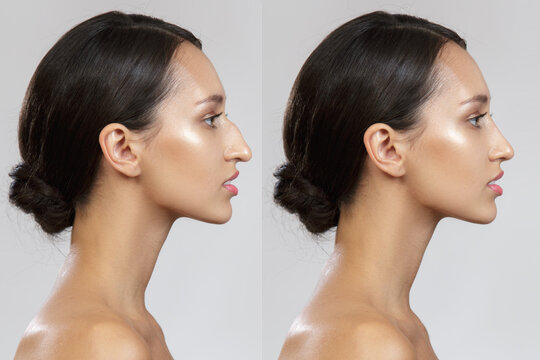 Comparison of the female nose after plastic surgery. Before after. Rhinoplasty