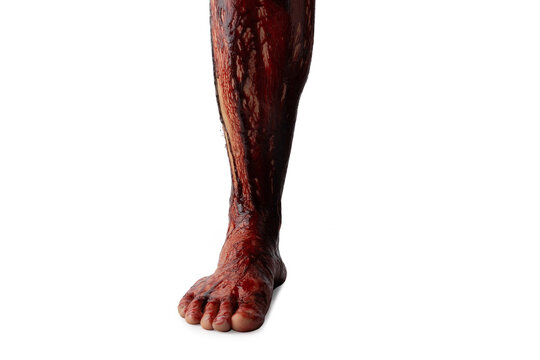 Bleeding human leg isolated on white background.