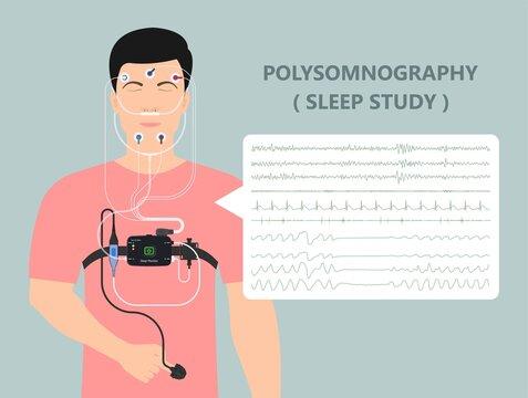 PSG sleep study test apnea diagnose Periodic limb movement disorder positive airway pressure CPAP restless leg syndrome Epworth Sleepiness Scale brain waves eeg