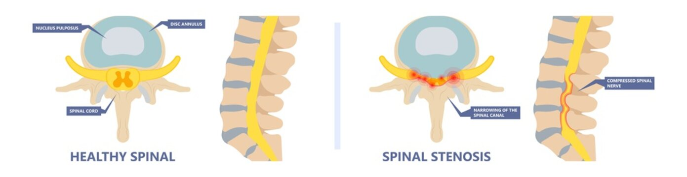 Spinal stenosis a narrowing of the spaces of the spine that causes lower back pain annulus nucleus bulged older cord muscle weakness neck cauda equina injury cushioning  vertebrae disk bone
