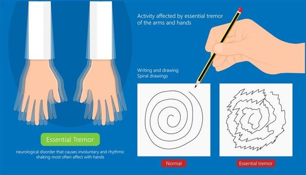 Essential tremor Deep brain stimulation DBS surgery device implant nerve uncontrollable arms head voice disability abnormal electrical controls muscle activity elderly Balance problem parkinson's