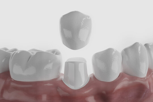 Dental crown visualization
