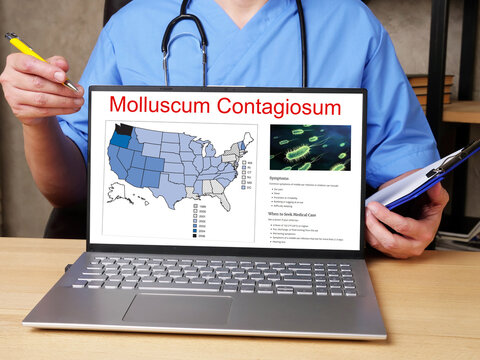 Medical concept meaning Molluscum Contagiosum  with inscription on the page.