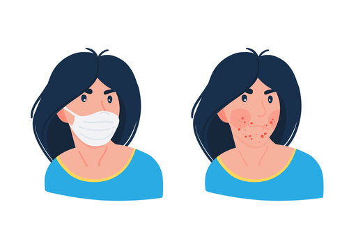 Woman having problems with acne caused by face mask. Face mask and acne maskne.