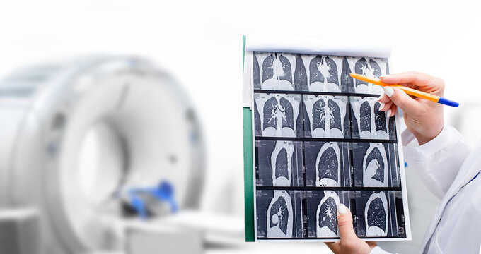 Radiologist showing tomography scan of a patient's lungs over of CT machine. Treatment of lung diseases, pneumonia, coronavirus, covid, cancer, tuberculosis