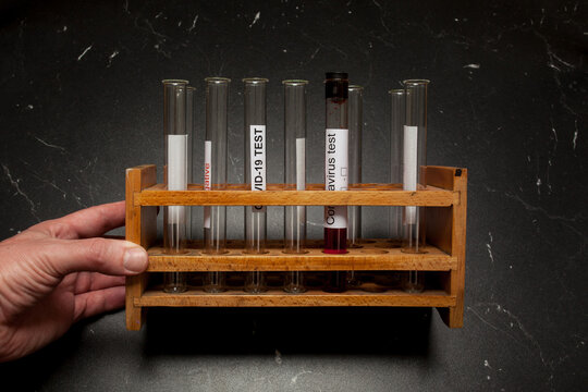 Test tube containing a blood sample, test tube for Covid-19 (coronavirus) analyzing. Laboratory testing patient's sample