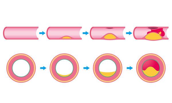 血管閉塞 動脈硬化の進行