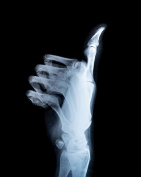 X-ray real scan thump up hand