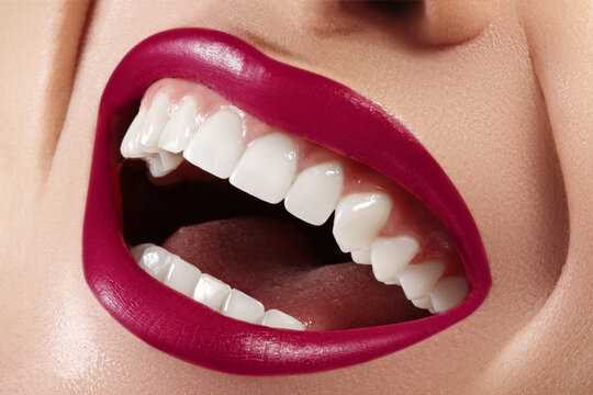 Dental Beauty. Beautiful Macro with perfect White Teeth. Fashion Lips Red Make-up. Whitening Tooth, Wellness Treatment