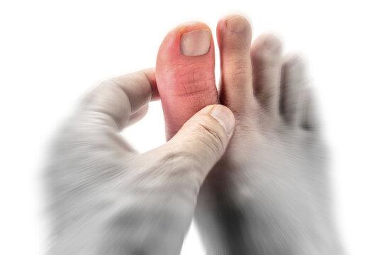 痛風症状の足の親指